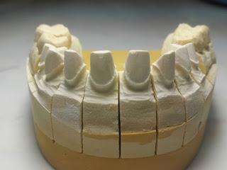 Nha khoa quận 10 BS Mai Xuân Ngọc bọc răng sứ 10