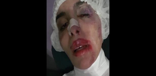 Viviany Beleboni, 'crucificada' na Parada LGBT, denuncia nova agressão em SP