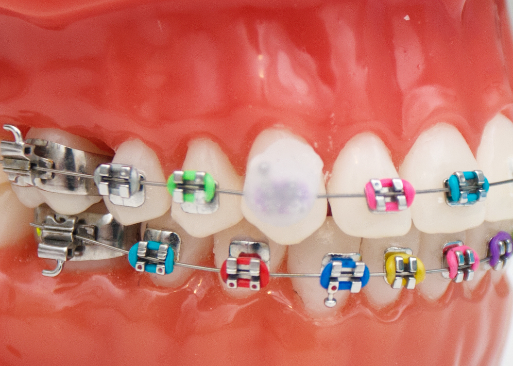 comment appliquer de la cire dentaire sur les accolades soins dentaires. Black Bedroom Furniture Sets. Home Design Ideas