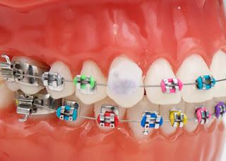 Comment appliquer de la cire dentaire sur les accolades
