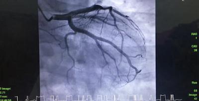 Proses Angiogram