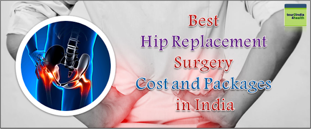 Hip Replacement Surgery Cost and Packages in India