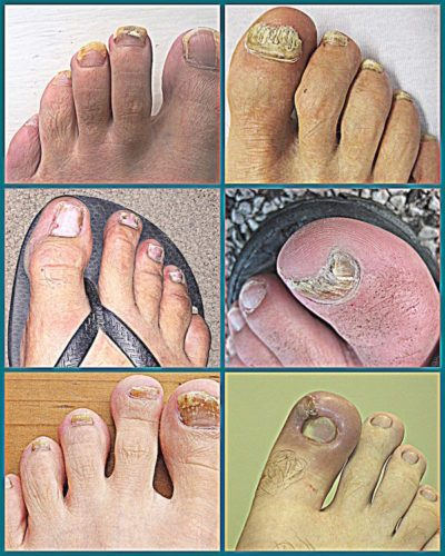 Does Vicks VapoRub for Toenail Fungus Really Work? - Healthy Lifestyle