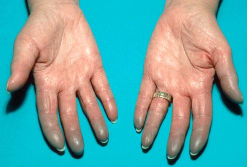 Flu symptoms finger tips numb - anlauvemonord45 - Blogcu.com
