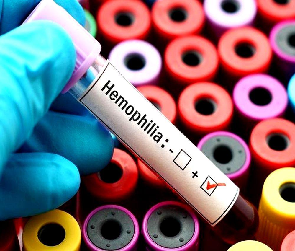 haemophilia-oral-medicine