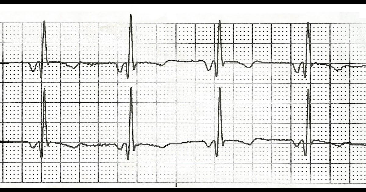 Float Nurse: EKG Rhythm Strip Quiz 113