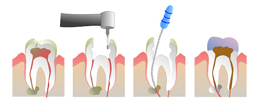 What is Root Canal Treatment exactly?