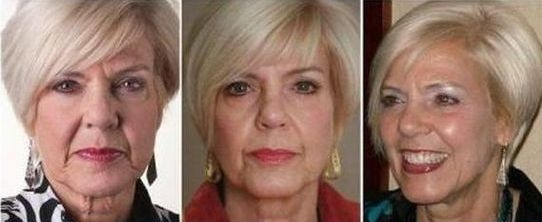 Exercises For The Face Towards A Natural Chinese Facelift