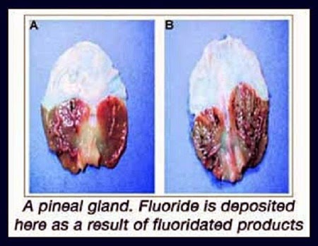 Image result for calcificacion de la glandula pineal