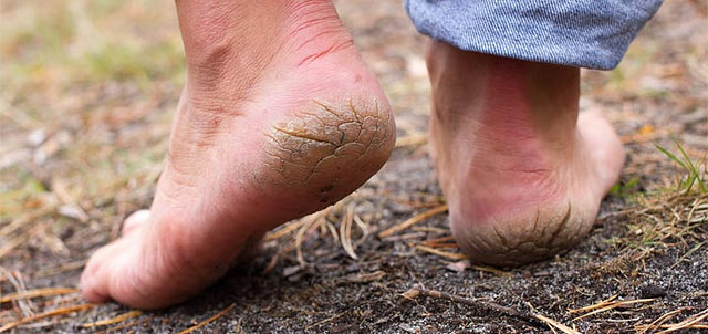 Cracked Heels Home Treatment : Make It Soft And Beautiful In Hindi