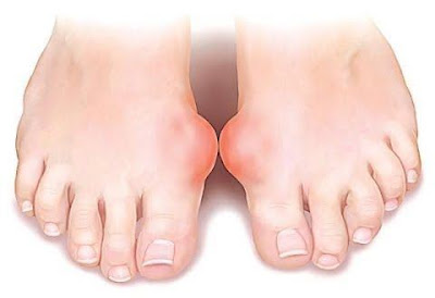 How to Get rid of Gout Pain Attack | Wellness Food Team