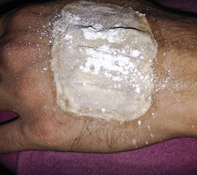 protesi per ferite