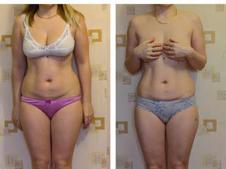 Ольга фото до і після похудіння на пігулках