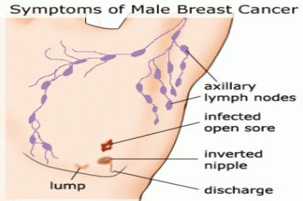 Signs And Symptoms For Male Breast Cancer Health