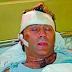 Halid Muslimović završio u bolnici, napali su ga nepoznati momci zbog…