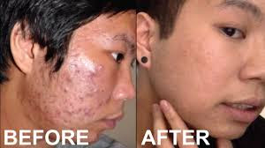 7 Proven Natural Ways To Get Rid Of Pimples Permanently