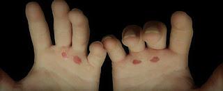 Heridas en las manos