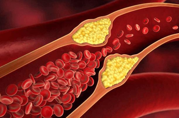Kolesterol Aman Untuk Dikonsumsi & Kesehatan Tubuh