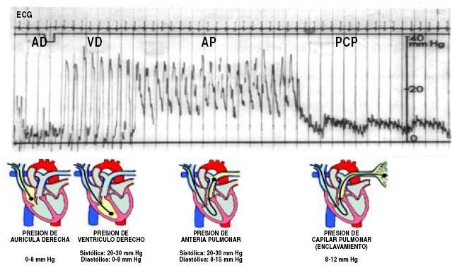 Como se mide presion arterial pulmonar