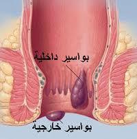 البواسير | علاج البواسير و اسباب و اعراض و التخلص منها بالأعشاب او عمليات البواسير