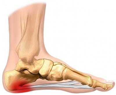 Bottom Of Heel Hurts