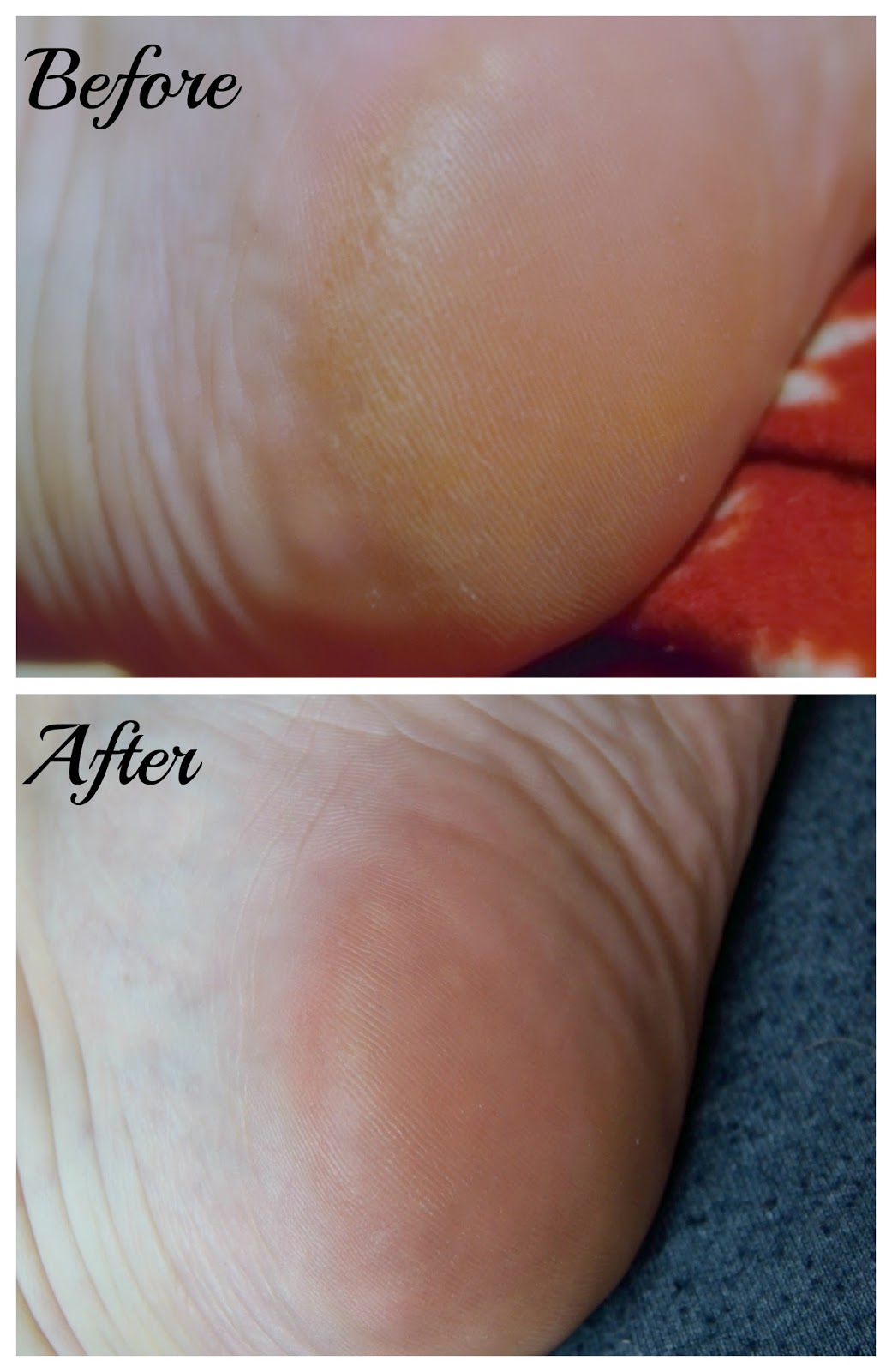 A picture of Holika Holika Silky Foot One Shot Peel before and after