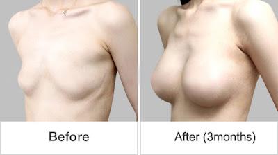 foto sebelum dan sesudah operasi plastik payudara Wonjin