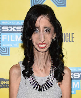 http://heavy.com/entertainment/2016/10/lizzie-velasquez-syndrome-a-brave-heart-who-is-lifetime-movie-age-ted-photos-body-illness-bio-austin-texas/