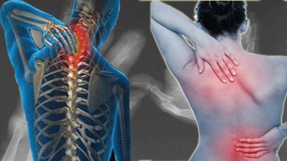 Fibromyalgia: New cannabis based medications can provide relief to people with the chronic pain