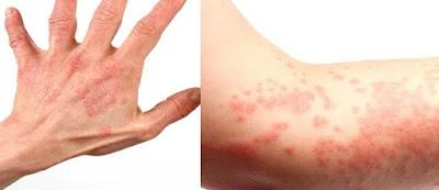 Cara Mengobati Alergi Secara Alami