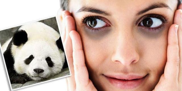 Mata-panda-hilang-dengan-eye-treatment-youth