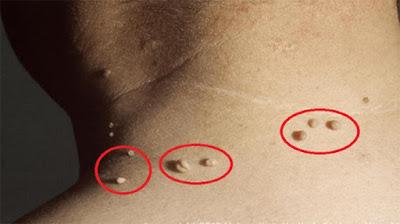 Foto Cara tradisional menghilangkan kutil di leher, bibir dan wajah