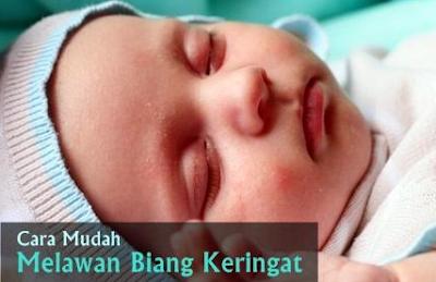 Cara Mengatasi Biang Keringat Pada Bayi Baru Lahir Pada Wajah Dan Leher