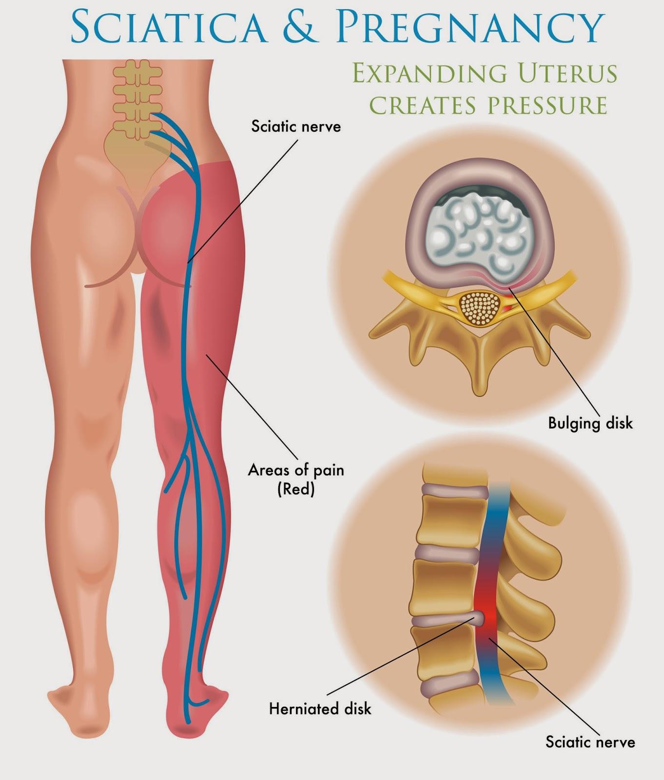 Remedios para quitar el dolor de ciatica