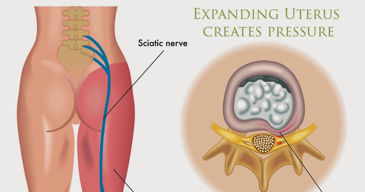 dolor nervio ciatico embarazo