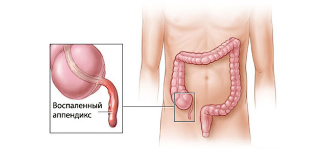Symptoms Of Appendicitis In Kids