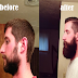Patchy Beard success stories Before and After photos