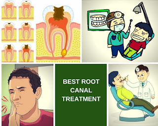Best Root Canal In Bangalore