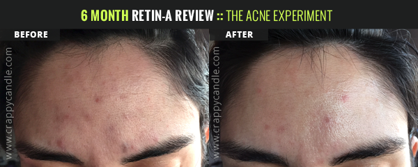 Retin-A Before/After - Forehead :: The Acne Experiment