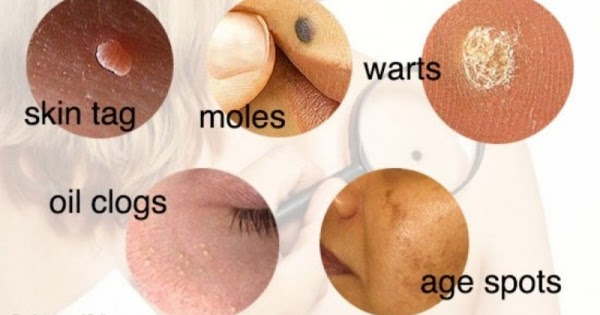 A Complete Guide To Removing Warts, Moles, Skin Tags and ...