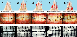 jamnagar dentist explain stages of periodontitis