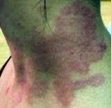 Image Cara hilangkan kulit gatal di leher