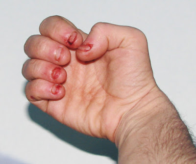 addicted to biting your nails