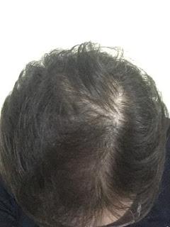 um ano de tratamento contra queda de cabelo excessiva