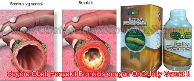 Cara Ampuh Menyembuhkan Bronkitis Secara Total