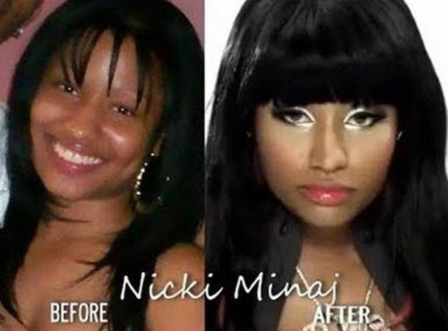 Celebrities Nicki Minaj Plastic Surgery Before Amp After