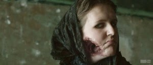 Ripper Street- A case of Phossy  Jaw, in it's worst stages.