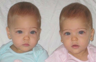 Δίδυμα κορίτσια γεννήθηκαν το 2010 – Τώρα είναι τα πιο όμορφα παιδιά του κόσμου!