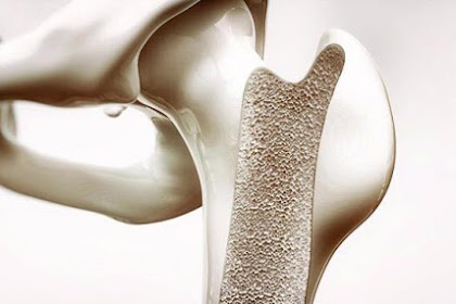 Menopause, Osteoporosis and Estrogen