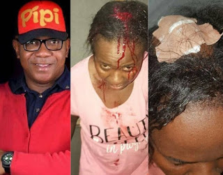 A Man allegedly batter wife after she was caught red handed cheating on her
